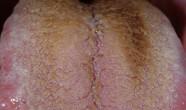 Limba neagra piloasa