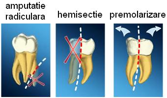 Premolarizare