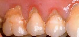 Tartrul dentar (piatra)