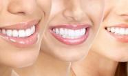 dezavantaje albire dentara