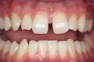 Sursa foto: dentalaegis.com