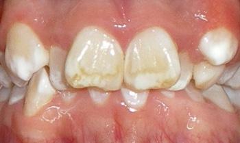 bacterie in tandvlees