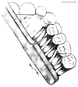 Periajul suprafetelor din spate