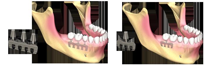 implant dentar lama