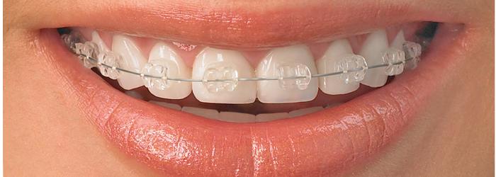 Tratament ortodontic - sfaturi si recomandari